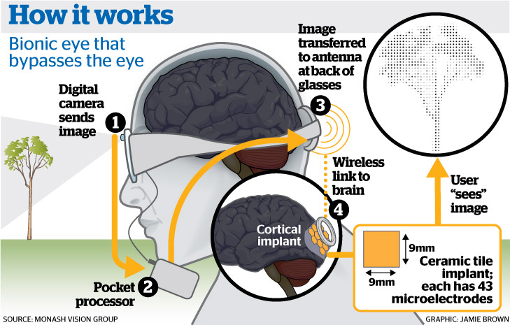 bionics eye and bionic ear essay Bitch media is celebrating as writer alicia rebensdorf noted in a september 2007 alternet essay  jaime had two bionic legs, a bionic arm, and a bionic ear.